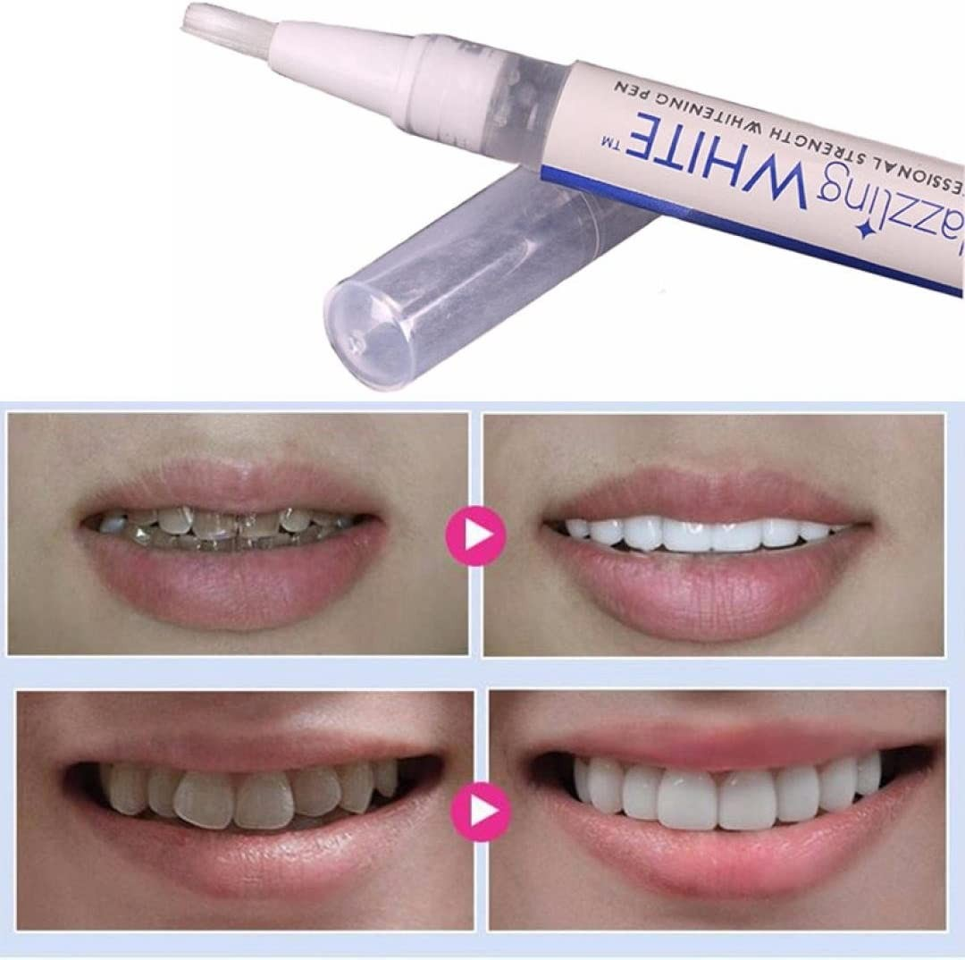 Coohole Teeth Whitening Gel Pen, White Tooth Cleaning Bleaching Dental Cleaner Professional Kit